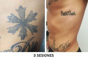 quitar-tatuaje-abdominal-3-sesiones