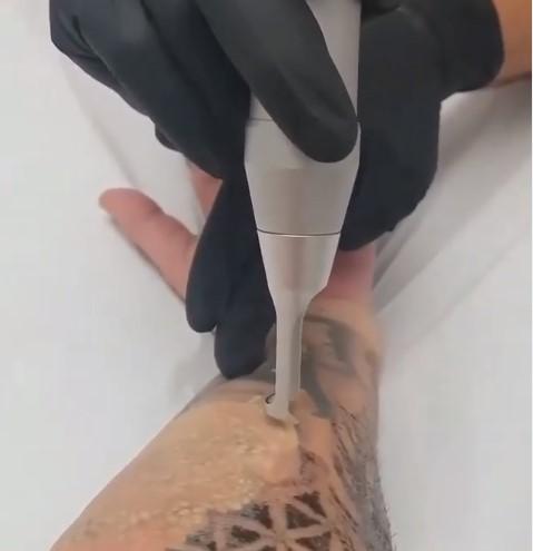 quitar-tattoo-con-laser